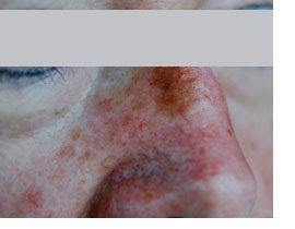 Sonnenschäden Altersflecken Kosmetisches Laserzentrum Laserpoint