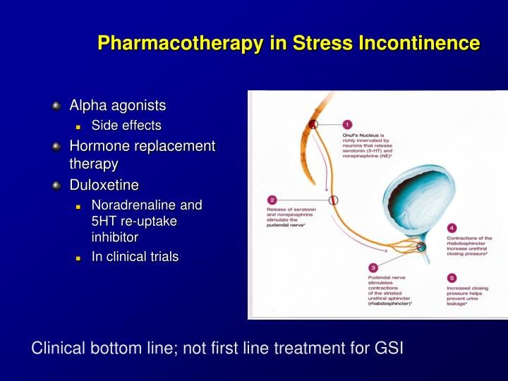 PPT - Urinary Incontinence for Medical Students PowerPoint ...