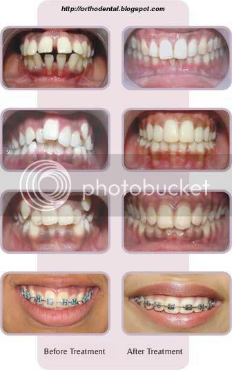 May B: Lumino dentist teeth whitening