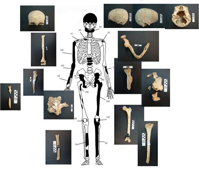 Ενδεικτική εκπροσώπηση οστών Ατόμου 1 με φωτογραφίες οστών.