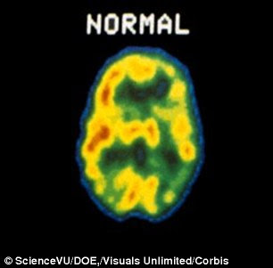 Is depression caused by inflammation in the brain? | Daily ...