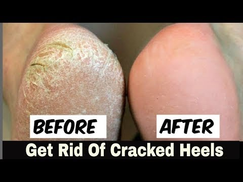 Home Remedy to Remove Cracked Heels Fast  Great Results skin whitening home remedies