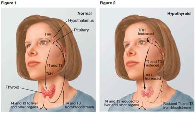 how to cure underactive thyroid
