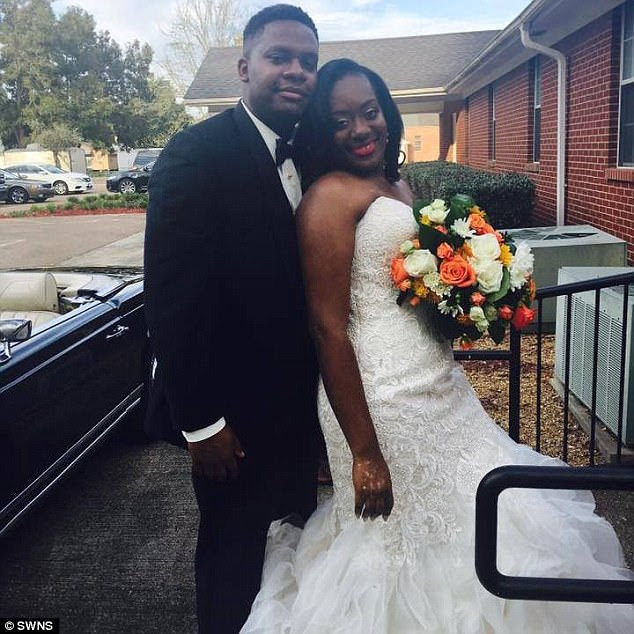 Bride in Tears After Developing Vitiligo Months Before Her Wedding (Photos)