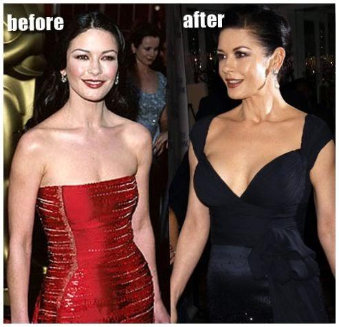 Blepharoplasty catherine Zeta Jones before and after ...