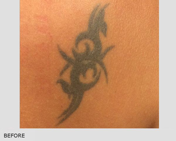 Barcelona Tattoo Removal Ribe Clinic