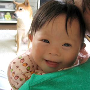 ダウン症 新生児 特徴