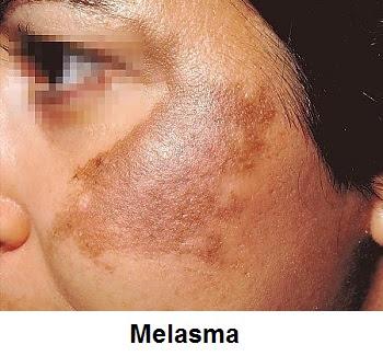 Meladerm for Melasma