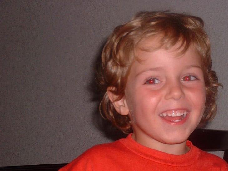 Fotografía de un niño pequeño con los ojos rojos