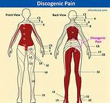 Images of Acute Lumbar Pain