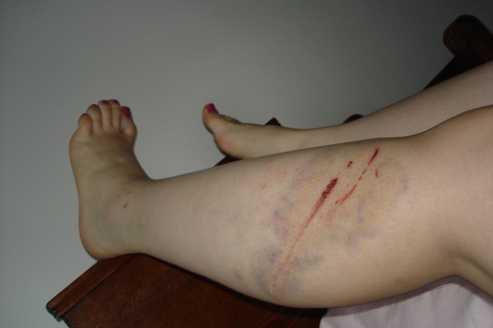 Bike accident wound