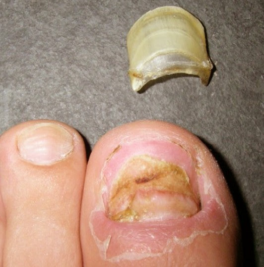 Toenail Falling Off - Symptoms, Causes and Treatment