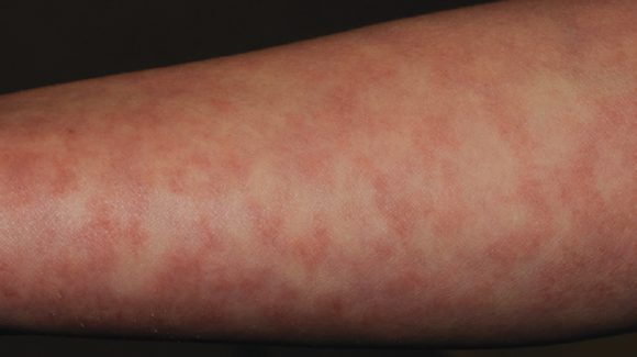 50-Year-Old Female with Discoloration on Arms - The Doctor ...