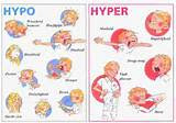 Does Cholesterol Medication Cause Diabetes Pictures
