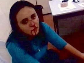 Advogada teve que passar por cirurgia após agressão (Foto: TV Diário/Reprodução)