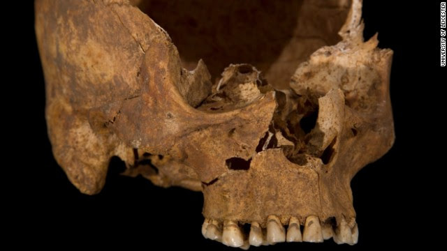 A wound to the cheek, possibly caused by a square-bladed dagger. The front part of the skull has separated naturally along the line of a suture (a joint between the skull bones), which is why it is not present in this picture. This would have fused as Richard became older had he lived.