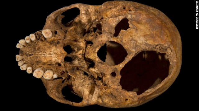 The base of the skull shows the larger of two potentially fatal injuries. This shows clearly how a section of the skull had been sliced off.