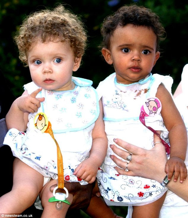 Amazing twins: Marcia (left) and Millie (right) pictured on their first