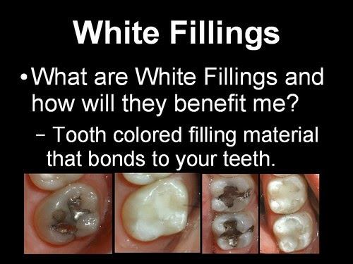 Independence, MO Dentistry: White Fillings vs. Silver Fillings