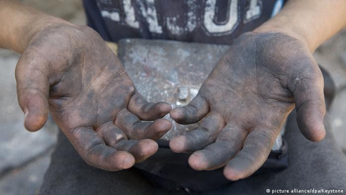 Resultado de imagem para Acidentes de trabalho vitimam mais de 40 mil crianças e adolescentes em dez anos
