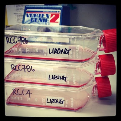 Say hello to my babies! :D they are renal carcinomas anyways. :P  (Taken with Instagram)
