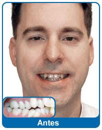 antes-e-depois-aparelho-dentario-5
