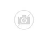 Photos of Pain In Acute Pancreatitis