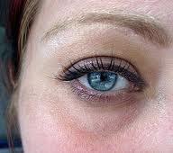 Under Eye Skin Discoloration | analgenitalbleaching