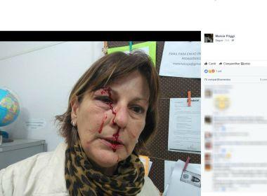Professora denuncia agressão de aluno de 15 anos: 'Não tive possibilidade de defesa'