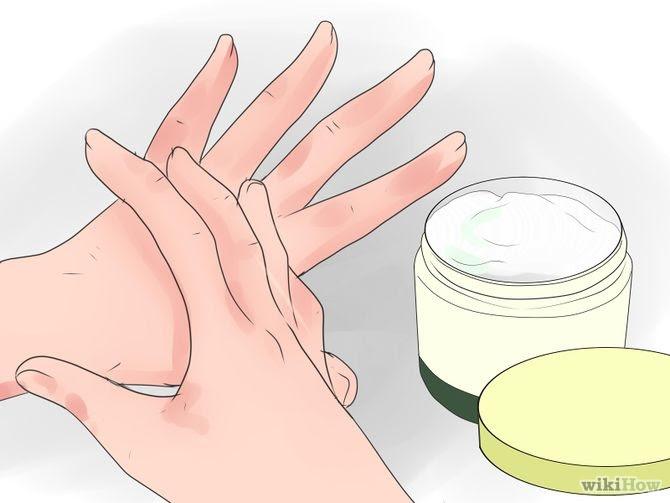 Heal Cracked Skin Step 8 Version 2.jpg