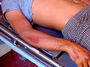 Dos heridos de gravedad al deslizarse camión en Jarabacoa