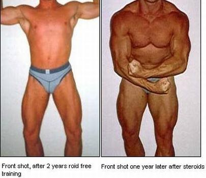 steroid injection side effects long term