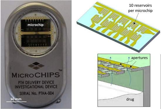 Farmácia implantável: Biochip libera medicamento automaticamente