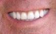 fixed denture