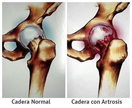 Resultado de imagen para artrosis de cadera