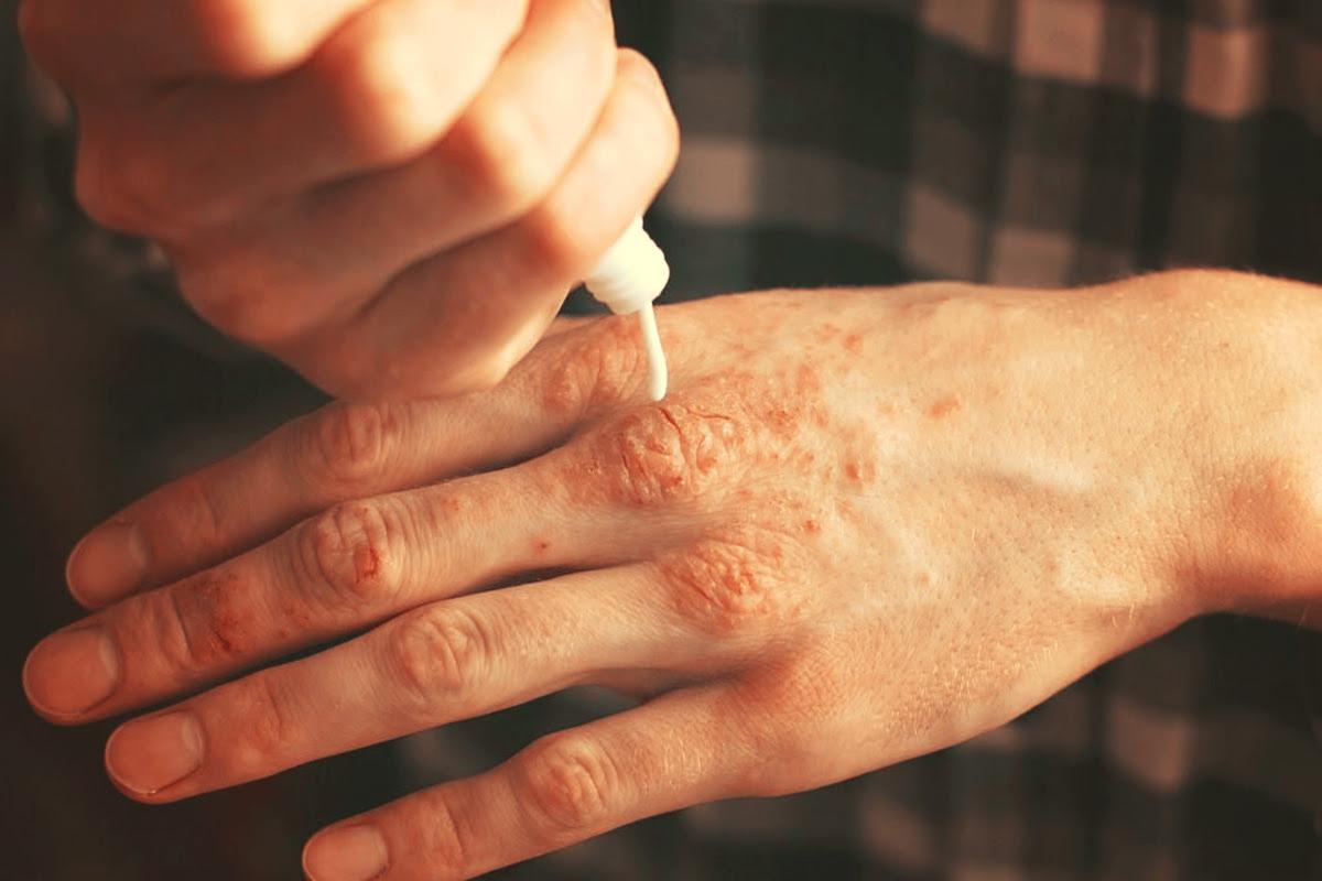 Psoriasis 10 Huiles Essentielles Pour Sen Défaire