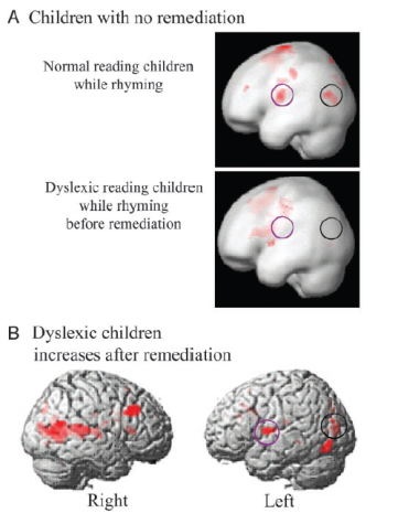 Dyslexic children increases after remediation
