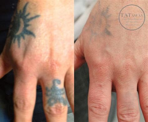 hand tattoo removal images pinterest arm