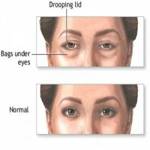 Fashion: How to get rid of puffy eyes- 5 simple home ...