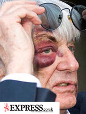 Bernie Ecclestone, olho machucado
