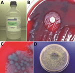Thumbnail of Bacterial culture results for 1,000-mL bottle of wound irrigation fluid in laboratory investigation of a 2012–2013 cutaneous melioidosis cluster in the temperate southern region of Western Australia. A) Wound irrigation fluid in original bottle. B) Direct primary culture of wound irrigation fluid on blood agar plate, showing growth inhibition of Pseudomonas aeruginosa and revealing Burkholderia pseudomallei around gentamicin disk. C) Filtrate of wound irrigation fluid from same bott