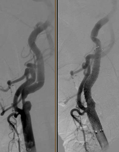 Angioplastia y stent carotídeo