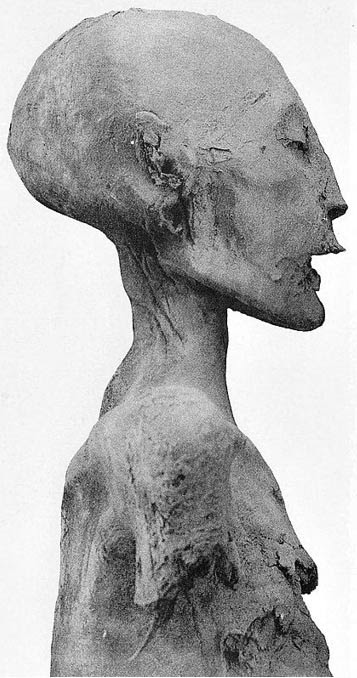 "Profile picture of the ""Younger Lady"" mummy who, according to genetic studies, corresponded to the mother of Tutankhamun. According to Marc Gabolde it is really the mummy of Nefertiti."
