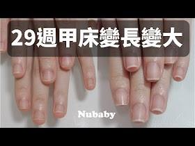 指甲萎縮-矯正成修長美甲,咬指甲 指甲短短寬寬 變成 甲床又大又長!