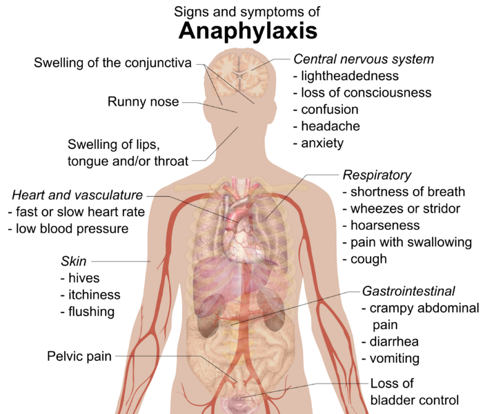 File:Signs and symptoms of anaphylaxis.png