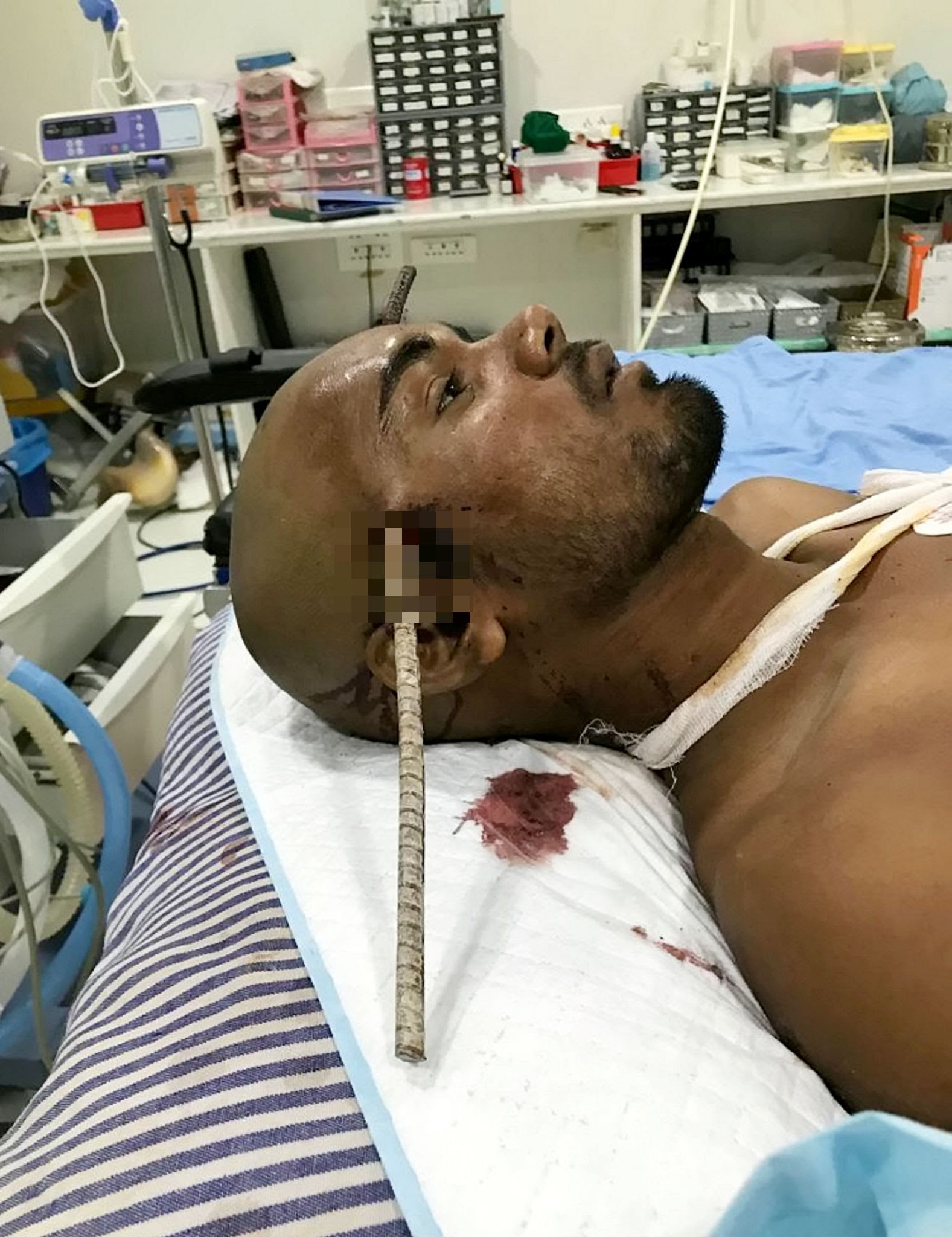 Sanjay Bahe's injuries after he was impaled through the head. Credit: SWNS