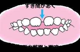 安心して下さい 子供の歯の隙間は成長の証 松戸の歯医者ありす歯科