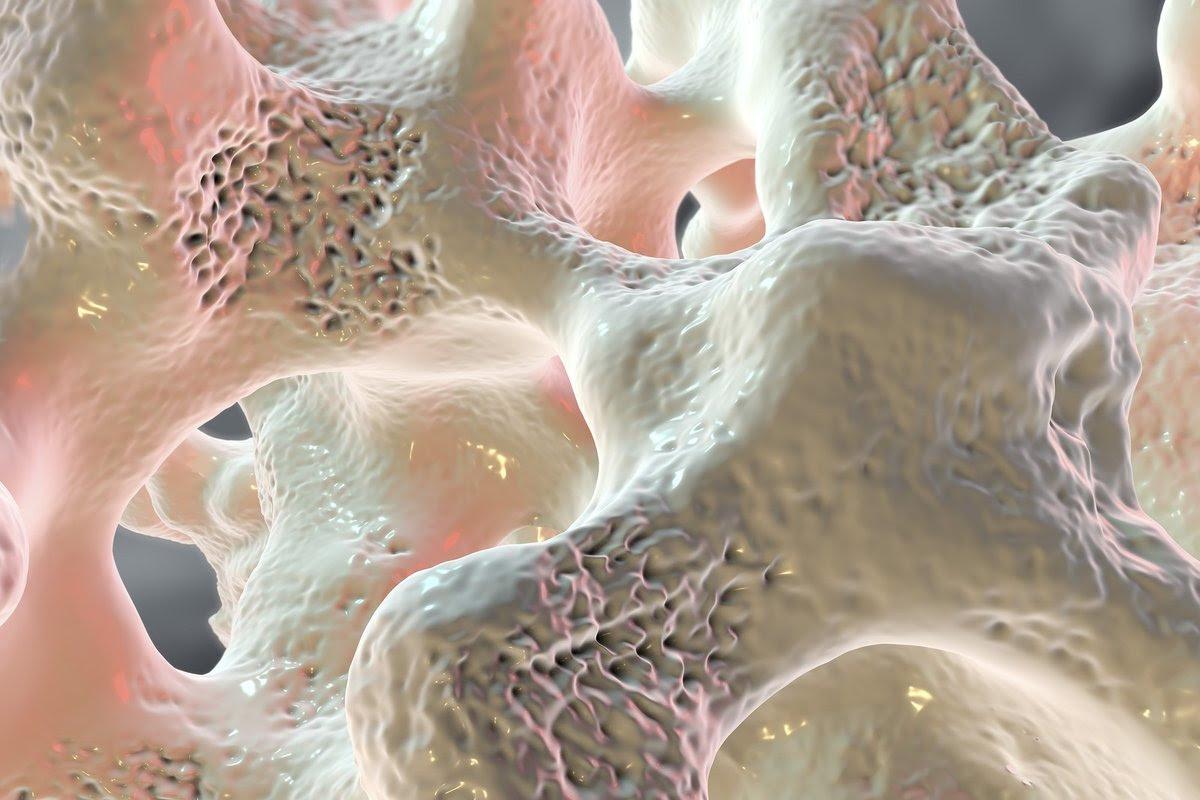 osteoporosis yogurt 3