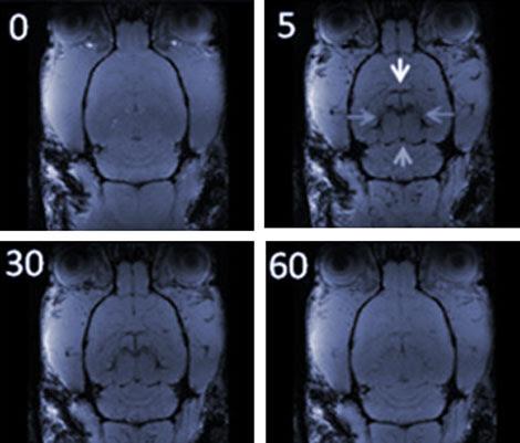 Imagen por RMI antes y después de la presencia de nanopartículas de óxido de hierro.  P. Morales