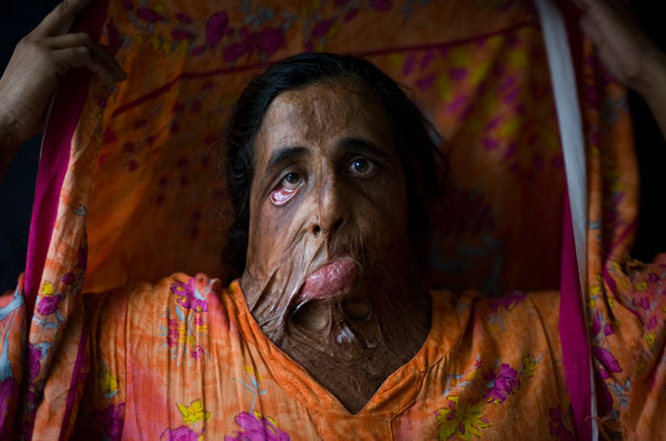 What a Muslim acid attack (not the one in this story) looks like